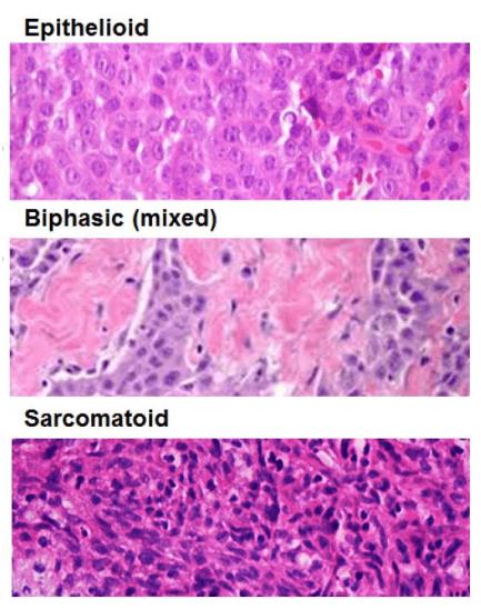 Biotecnol Immunotherapies For Life